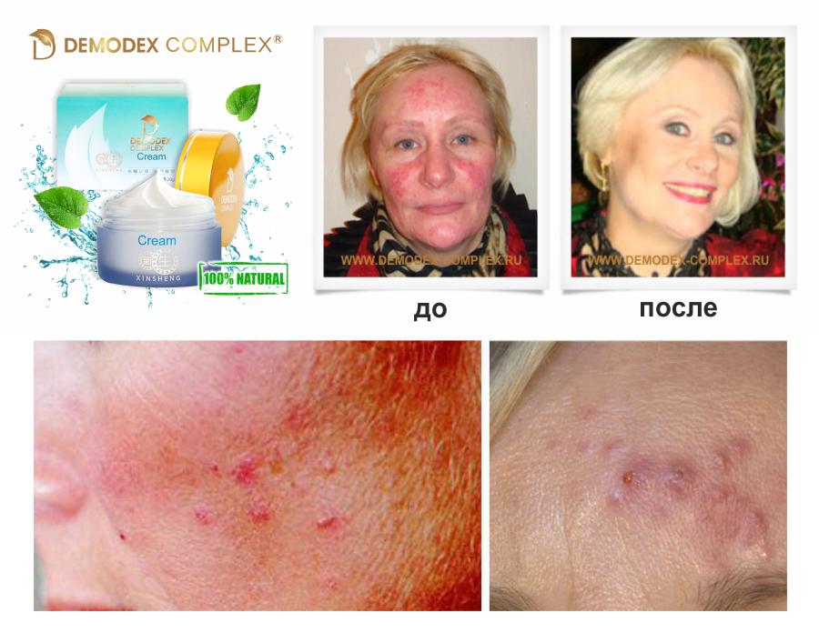 Фото: демодекс на лице успешное лечение Demodex Complex