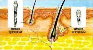 Прыщи на лице демодекс