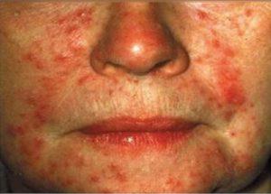 Демодекоз на лице у женщин. Папулезно-пустулезная форма.