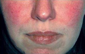 Демодекоз на лице у женщин. Эритематозная форма.